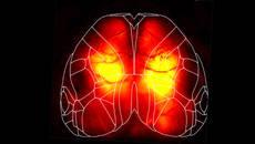 Widefield calcium imaging